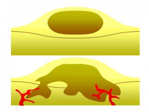 Benign vs. Malignant tumor