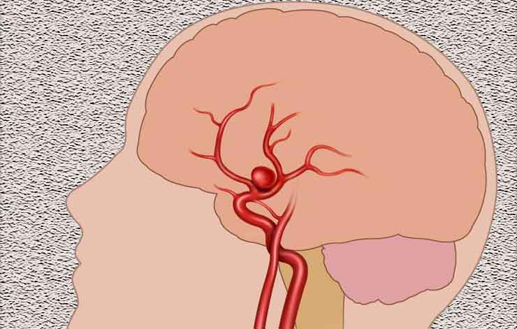 Brain Aneurysm Symptoms