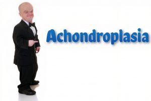 Achondroplasia | Causes, Signs, Standard Therapies, Prevention in children & More