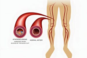 Peripheral Vascular Disease (PVD) | Causes, Symptoms, Diagnosis & Treatment