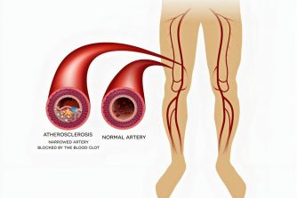 Peripheral Vascular Disease (PVD) | Causes, Symptoms, Diagnosis & Treatment